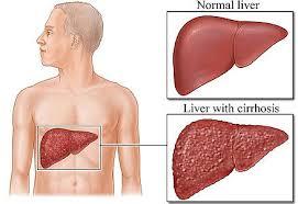 liver image