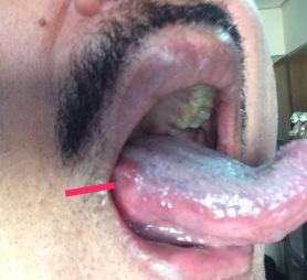 tongue-pic